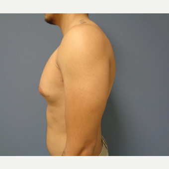 18-24 year old man treated with Male Breast Reduction before 3493596