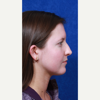 18-24 year old woman treated with Rhinoplasty before 3109151