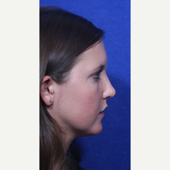 18-24 year old woman treated with Rhinoplasty after 3109151