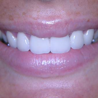 25-34 year old woman treated with Porcelain Veneers after 3770374