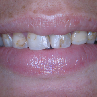 25-34 year old woman treated with Porcelain Veneers before 3770374