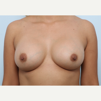 Breast Augmentation after 3345232