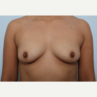 Breast Augmentation before 3345232