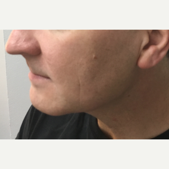 45-54 year old man treated with Microneedling after 3775447