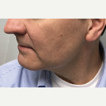 45-54 year old man treated with Microneedling before 3775447