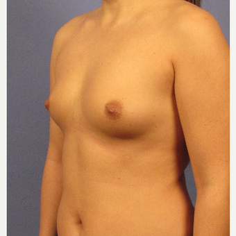 25-34 year old woman treated with Breast Augmentation before 3106695