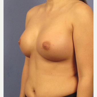 25-34 year old woman treated with Breast Augmentation after 3106695