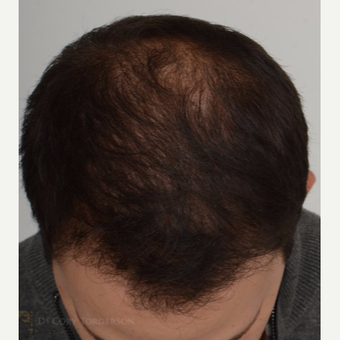 35-44 year old man treated with FUE Hair Transplant after 3810057