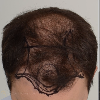 35-44 year old man treated with FUE Hair Transplant before 3810057