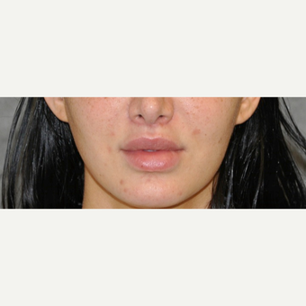25-34 year old woman treated with Lip Lift after 3175786
