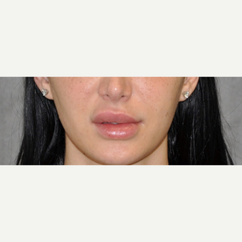 25-34 year old woman treated with Lip Lift before 3175786