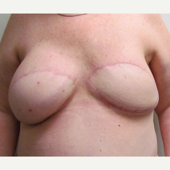 Nipple Reconstruction & Nipple Tattooing for this 60 Year Old Woman