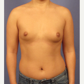 25-34 year old woman treated with Breast Implants before 3095801