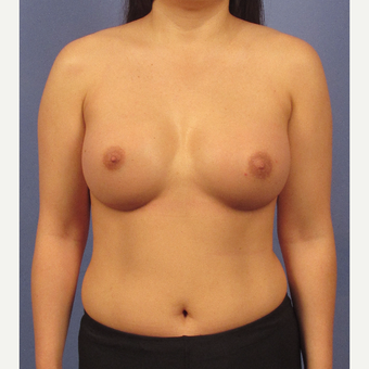 25-34 year old woman treated with Breast Implants after 3095801