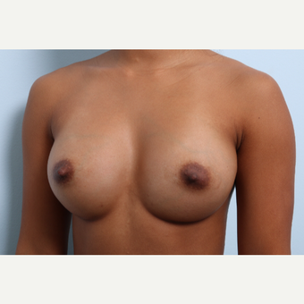 Breast Augmentation after 3459962