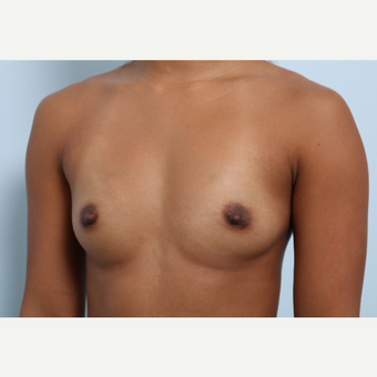 Breast Augmentation before 3459962