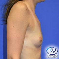 25-34 year old woman treated with Breast Augmentation before 2910207