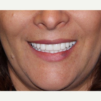 45-54 year old woman treated with All-on-4 Dental Implants after 1762337