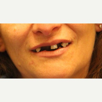 45-54 year old woman treated with All-on-4 Dental Implants before 1762337