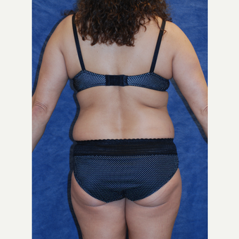 49 year old athletic woman treated with Liposuction of Back and Bra Band before 3577575