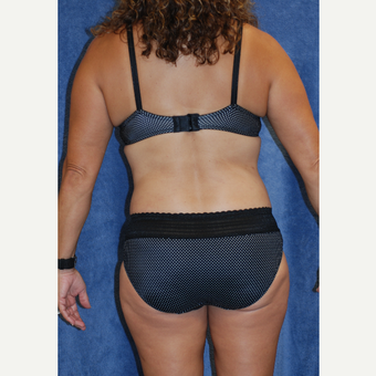 49 year old athletic woman treated with Liposuction of Back and Bra Band after 3577575