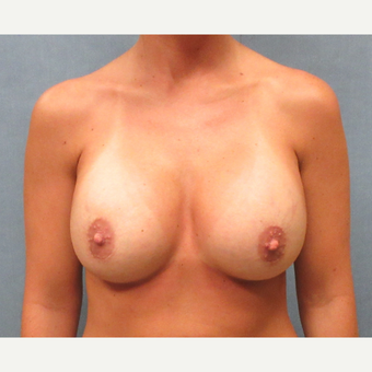 25-34 year old woman treated with Breast Implant Revision after 3635530