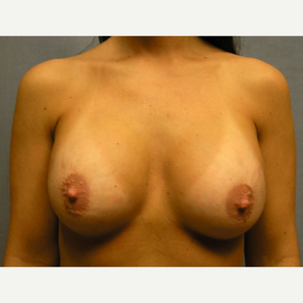 25-34 year old woman treated with Breast Implant Revision before 3635530