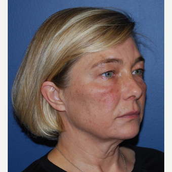 45-54 year old woman treated with Lower Face Lift before 3428273
