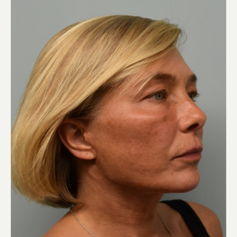 45-54 year old woman treated with Lower Face Lift after 3428273