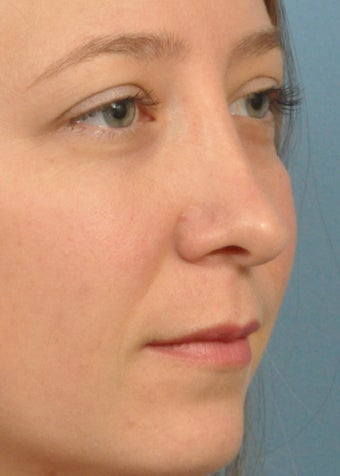 25-34 year old woman treated with Rhinoplasty after 2106900