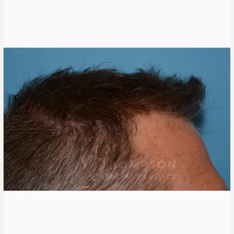 45-54 year old man treated with Hair Transplant after 3366611
