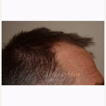45-54 year old man treated with Hair Transplant before 3366611