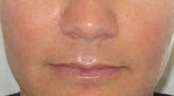 39 year old undergoing fillers to her nasolabial folds after 811436
