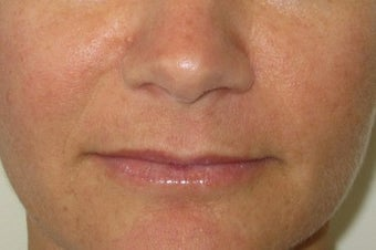 39 year old undergoing fillers to her nasolabial folds before 811436