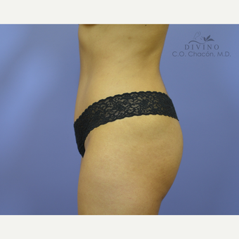 25-34 year old woman treated with Liposuction after 3421470