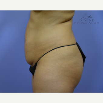 25-34 year old woman treated with Liposuction before 3421470