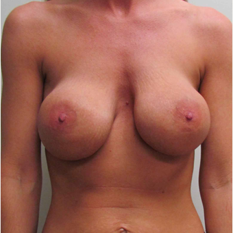 Breast Lift with Implants for this 37 Year Old Mother of Three before 3043029