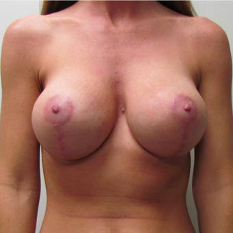 Breast Lift with Implants for this 37 Year Old Mother of Three after 3043029