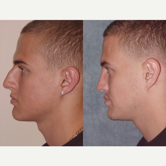 18-24 year old man treated with Rhinoplasty after 3224155