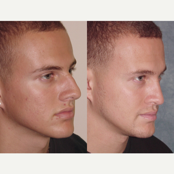18-24 year old man treated with Rhinoplasty before 3224155