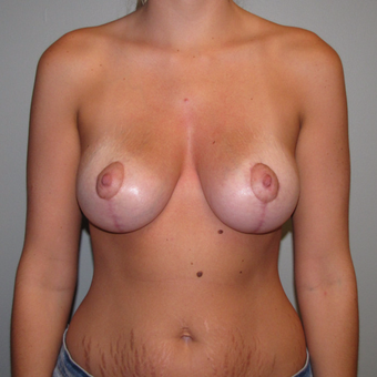 25-34 year old woman treated with Breast Lift with Implants after 3544172