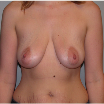 25-34 year old woman treated with Breast Lift with Implants before 3544172