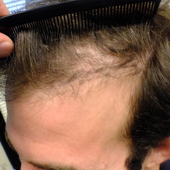 Amazing Result 18-24 year old man treated with FUE Hair Transplant before 2806917