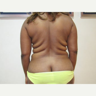 35-44 year old woman treated with Liposuction before 1844599