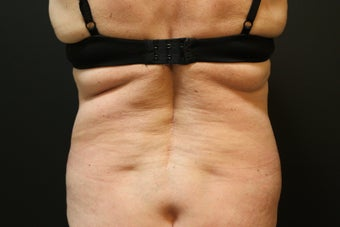 Laser Liposuction - Flanks before 1058512