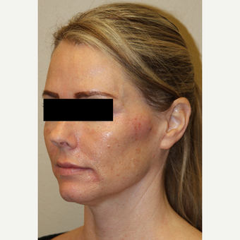 45-54 year old woman treated with Voluma after 3215334