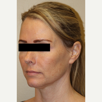 45-54 year old woman treated with Voluma before 3215334