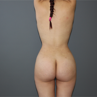 25-34 year old woman treated with Brazilian Butt Lift after 3266345