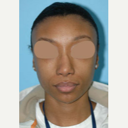 25-34 year old woman treated with African American Revision Rhinoplasty before 3332429