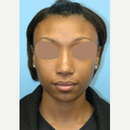 25-34 year old woman treated with African American Revision Rhinoplasty after 3332429